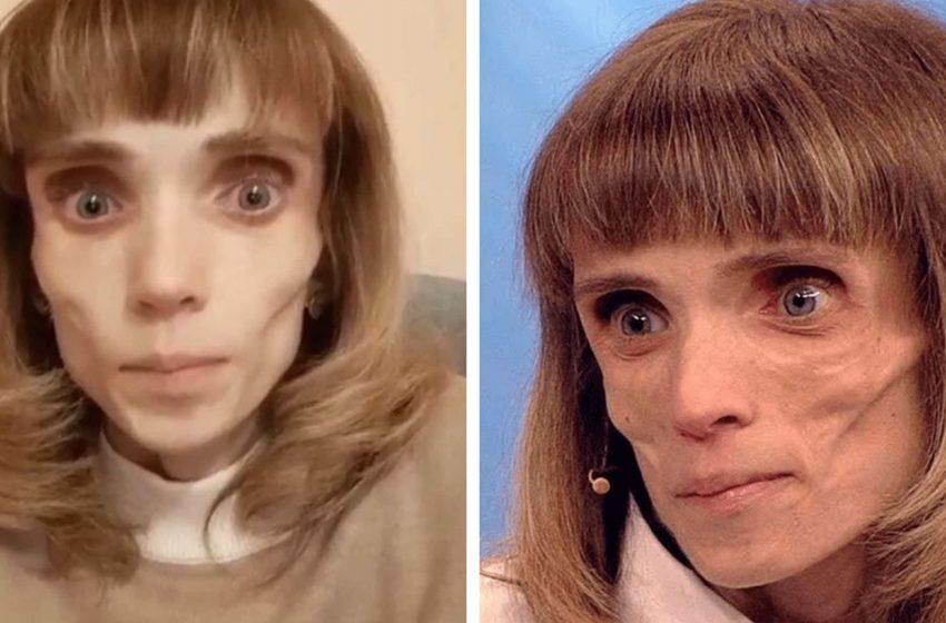 «Как похорошела»: как выглядит сейчас Кристина, когда-то весившая 17 кг