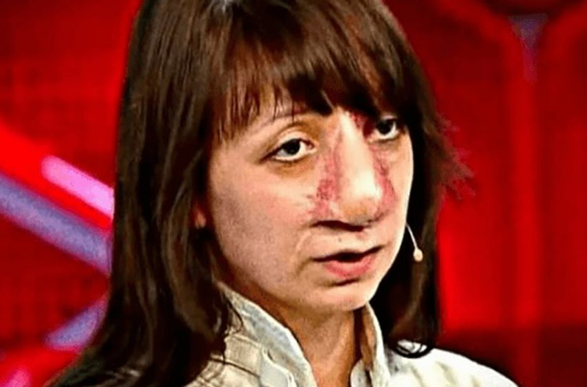 «Вырвалась из оков внешности»: Как изменилась жизнь Яны Муратовой после ток — шоу «Прямой эфир»