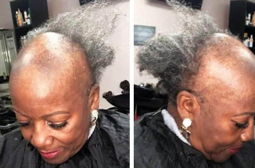 Женщина стеснялась выходить в свет из-за почти облысевших волос. Но мастер сумел сделать из ничего красивую прическу