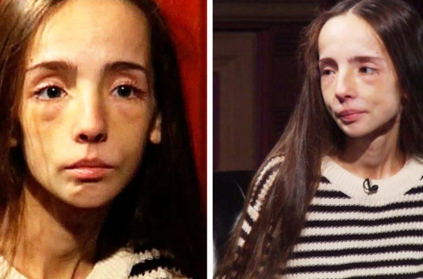 Как сейчас выглядит и что делает участница «Битвы экстрасенсов», Екатерина Яковлева, которая весила 37 килограмм