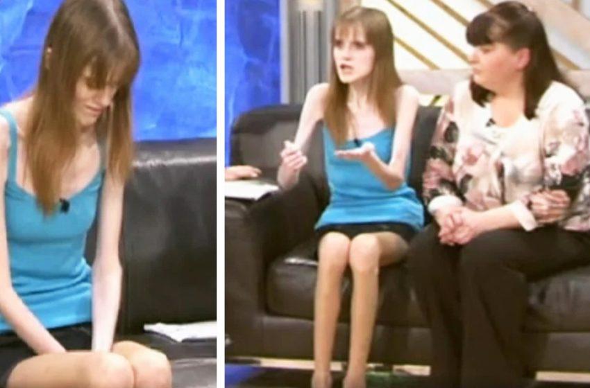 Как сейчас выглядит Елена Лидер, которая в 15 лет весила 26 килограмм при росте 165 сантиметров